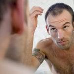 calvitie-chute-de-cheveux