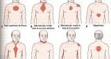 L'angine de poitrine est une douleur thoracique temporaire qui résulte d'un flux insuffisant d'oxygène au myocarde. Sa survenue est généralement décrite comme une sensation de brûlure, une compression, ou une […]