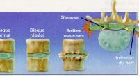 Les douleurs cervicales et dorsales, en particulier la douleur dans le bas du dos, est l'un des problèmes de santé les plus courants chez les adultes. En fait, selon l'Institut […]