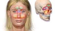Vue d'ensemble de la sinusite La sinusite aiguë est une infection bactérienne dans un ou plusieurs sinus, qui comprennent le maxillaire, ethmoïde, et sinus frontaux. La sinusite aiguë est généralement […]