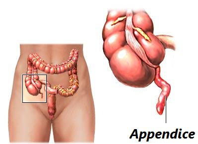 appendicite chez l'enfant symptomes et conduite à tenir