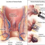HÉMORROÏDES : causes, symptomes et traitement 2