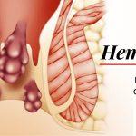 HÉMORROÏDES : causes, symptomes et traitement 6
