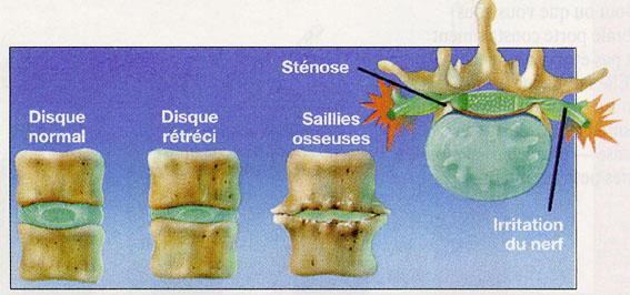 mal de dos lombalgie et douleur dorsale magazine sante tunisie