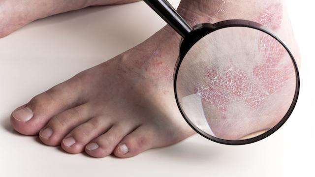Qu'est-ce que le psoriasis ? 1