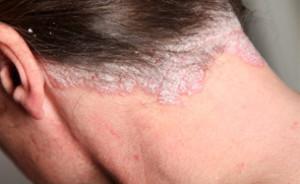 Qu'est-ce que le psoriasis ? 4