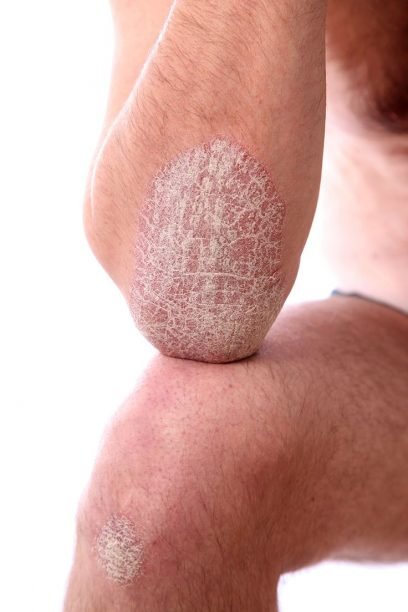 comment soigner le psoriasis