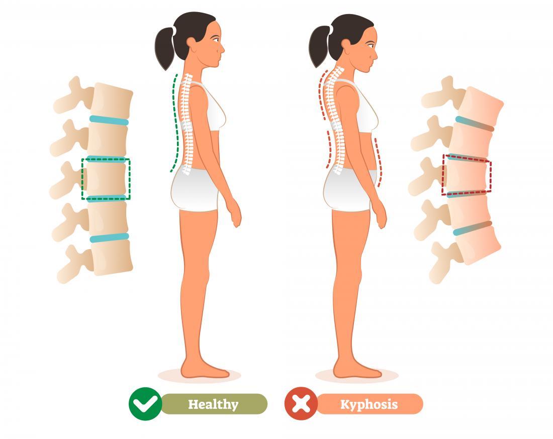 Comment soigner une cyphose dorsale, chez l'adulte et l'enfant