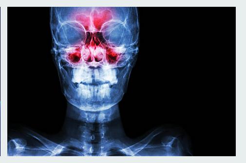 Comment poser le diagnostic d'une sinusite chronique ? 1