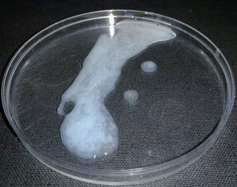 quest-ce-que-le-sperme-role-et-physiologie-du-liquide-seminal