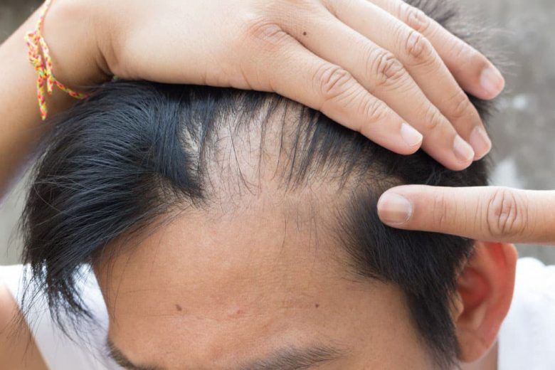 quel-est-le-lien-entre-la-lysine-et-la-perte-de-cheveux