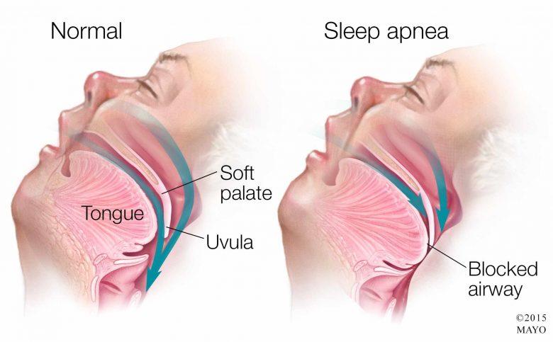 lapnee-du-sommeil-symptomes-et-traitements