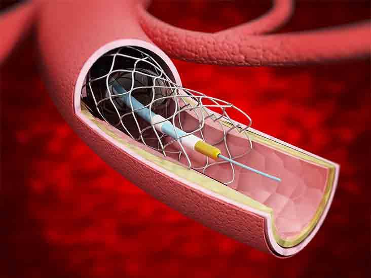 quels-sont-les-effets-secondaires-les-plus-courants-du-stent