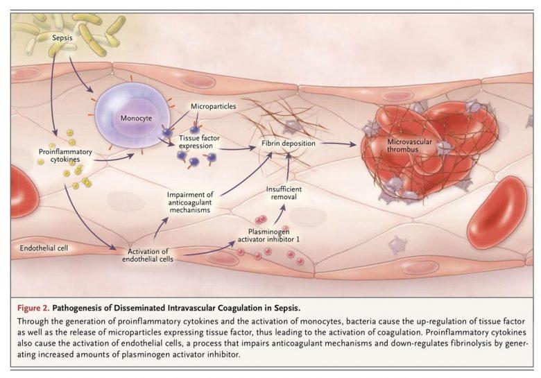 Qu'est-ce que la coagulation intravasculaire disséminée ? 1