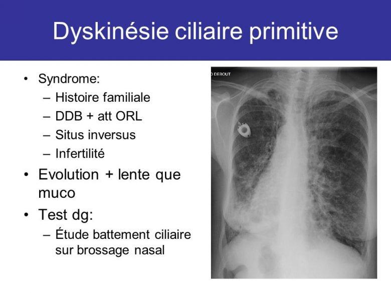 https://psychologie-sante.tn/wp-content/uploads/2018/06/quest-ce-que-la-dyskinesie-ciliaire-primaire.jpg
