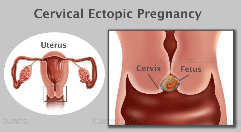 quest-ce-quune-grossesse-cervicale