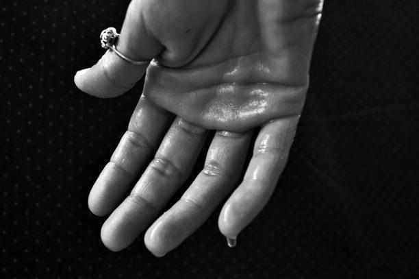 La transpiration : diagnostic et traitements 2