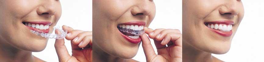 8 Avantages du traitement par gouttières Invisalign 2