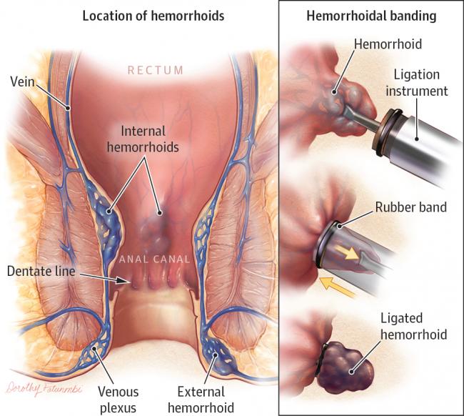 Hémorroïdes : Actions préventives et traitements naturels 1