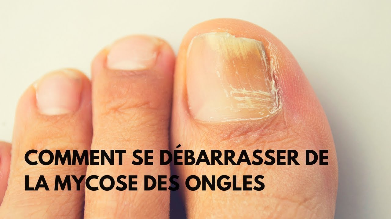 L'onychomycose : Maladie fongique des ongles 1