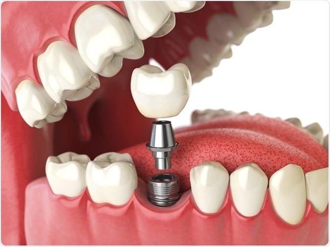 Qu'est-ce-qu'un implant dentaire ?