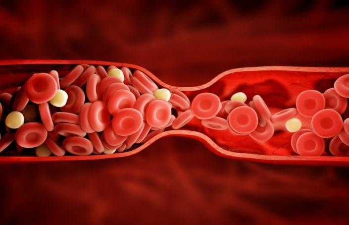 Caillots sanguins : Causes, traitement et prévention