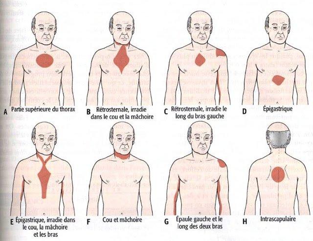 Angine de poitrine, Localisation des douleurs