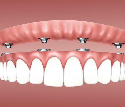 Implants dentaires - Le Processus et ses avantages