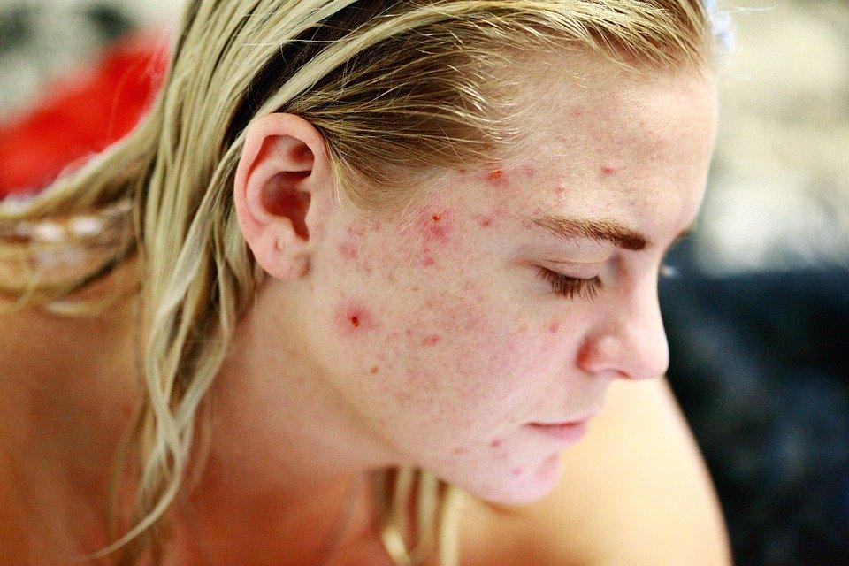L'acné, actions préventives et traitements naturels