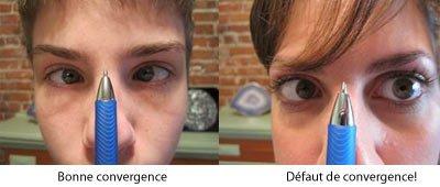 Motricité oculaires : Problèmes visuels & symptômes sensoriels